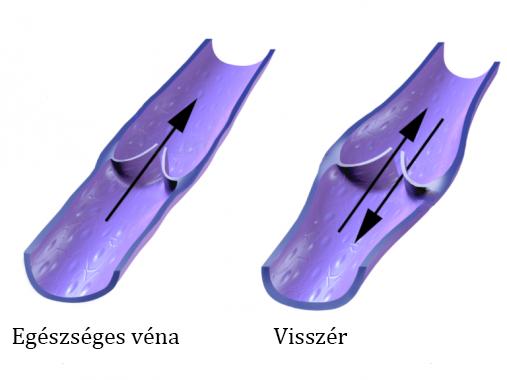 visszér saphena véna visszérrel milyen kenőcsök