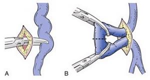 Visszérműtét